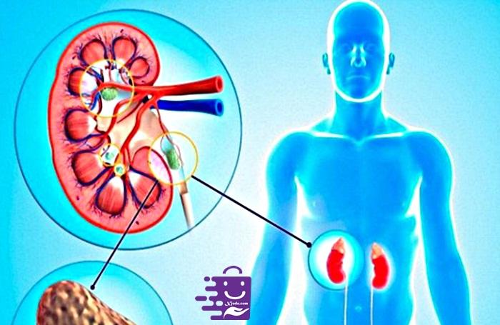 gejala batu ginjal pada wanita, gejala batu ginjal pada pria, penyebab batu ginjal, bahaya batu ginjal, makanan penyebab batu ginjal, operasi batu ginjal, batu ginjal pdf, obat batu ginjal di apotik,